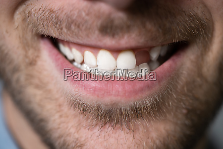 man with missing tooth
