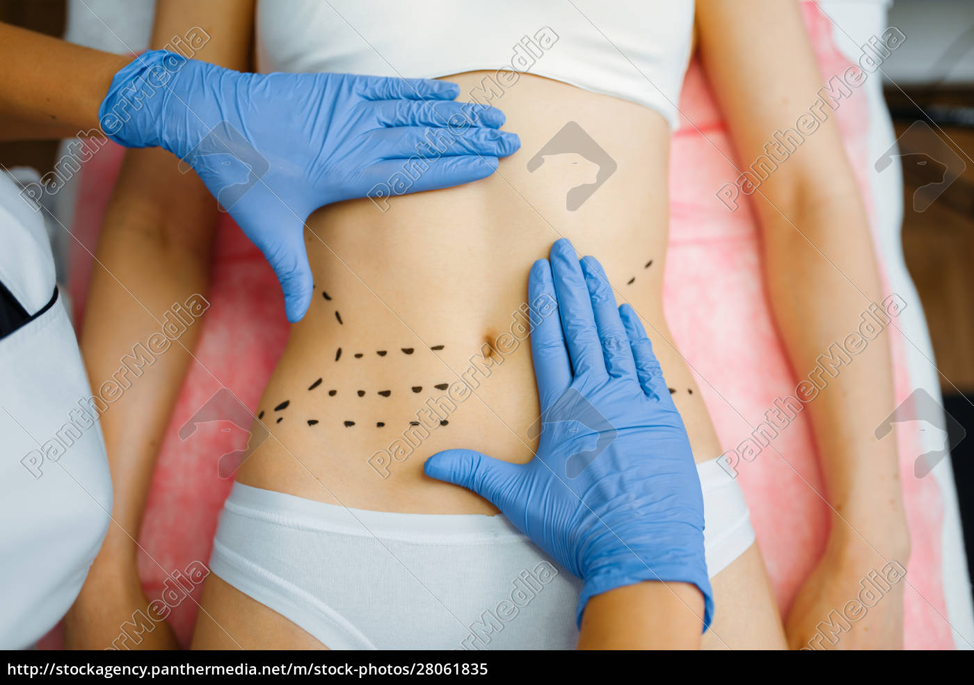 cosmetician's, hands, on, female, patient, abdomen - 28061835