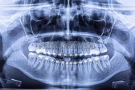 dental radiography with braces