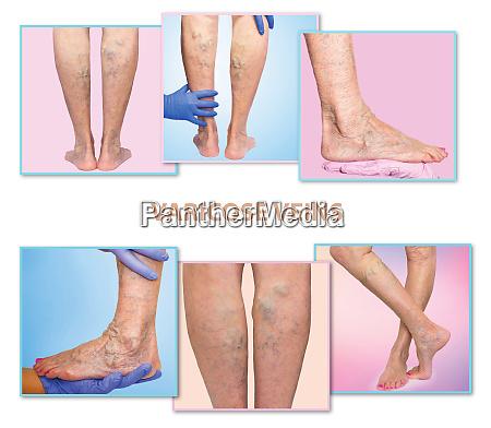 painful varicose veins spider veins varices