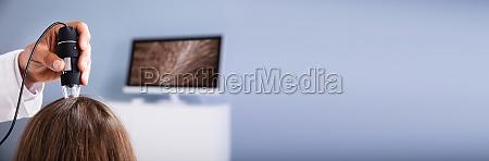 dermatologist using trichoscope for hair fall