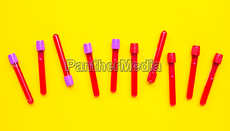 blood in test tubes on yellow