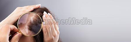 dermatologist examining womans hair