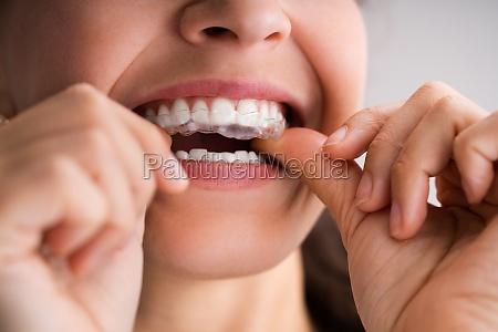 clear aligner dental night guard