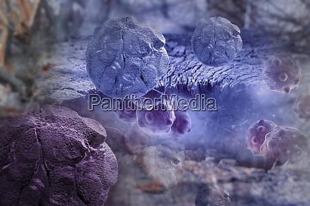 digital 3d illustration of cancer cells