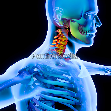 inflammation of the spine to the
