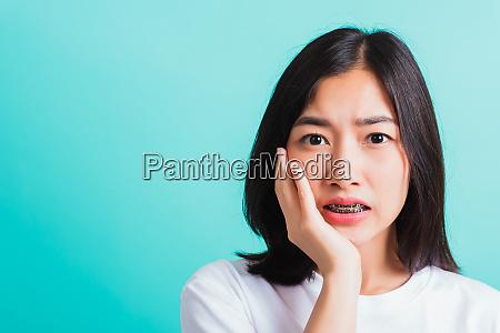 woman smile have dental braces on