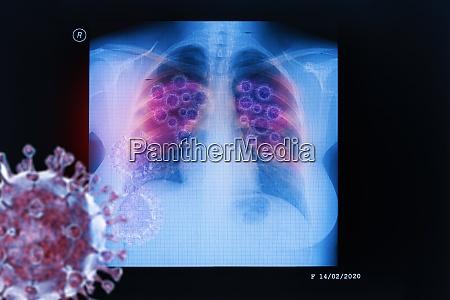 coronavirus disease covid 19 virus infection