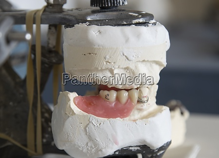 dental impression molds for chewing reconstruction