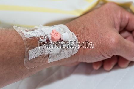 venflon cannula for infusion