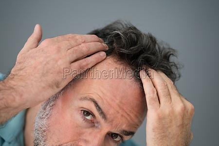 man checking his hair loss
