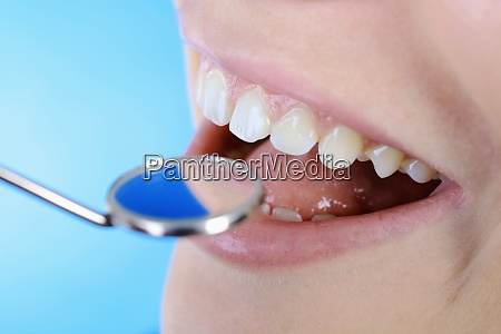 zahn untersuchung mit mundspiegel