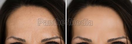 anti rejuvenation forehead wrinkles lift