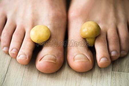 fungus mushroom between toenail smelly feet