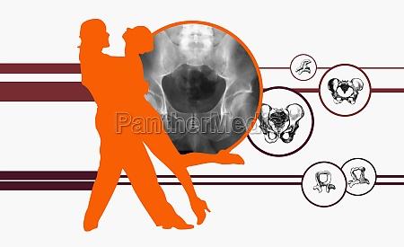 couple dancing on diagrams of human
