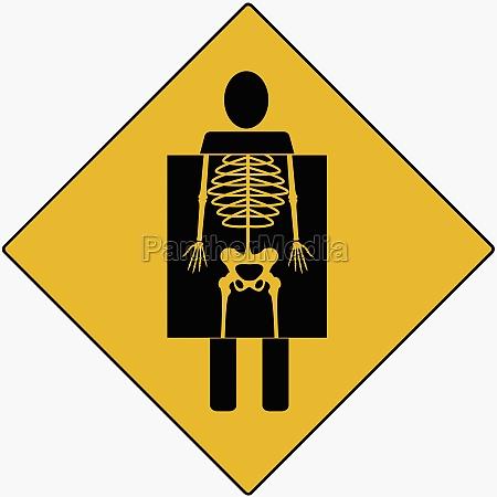 x ray showing human skeleton