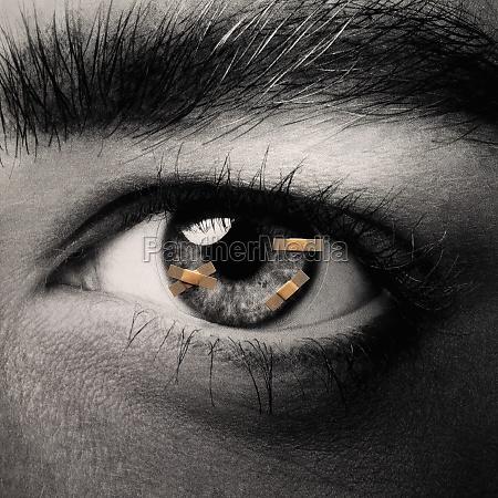 adhesive bandages on an eyeball
