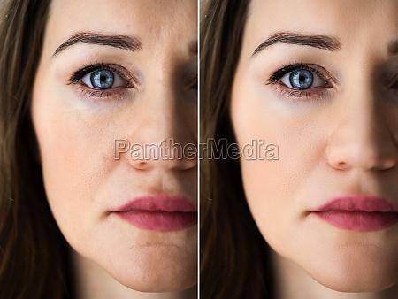 anti age rejuvenation lift before