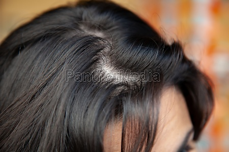 woman shows thinning hair near the