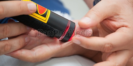 laser therapy to the thumb