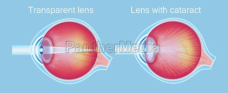 cataract eyes icon vector