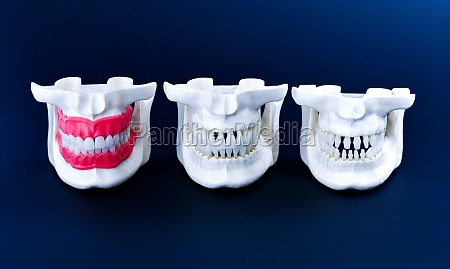 human jaws with teeth and gums