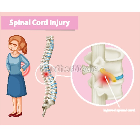 diagram showing spinal cord injury in