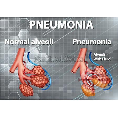 human anatomy showing pneumonia