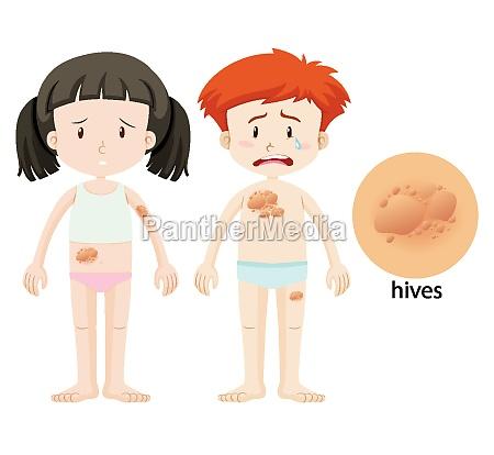 diagram showing hives on boy and