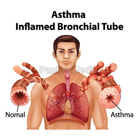 human anatomy asthma inflamed bronchial tube