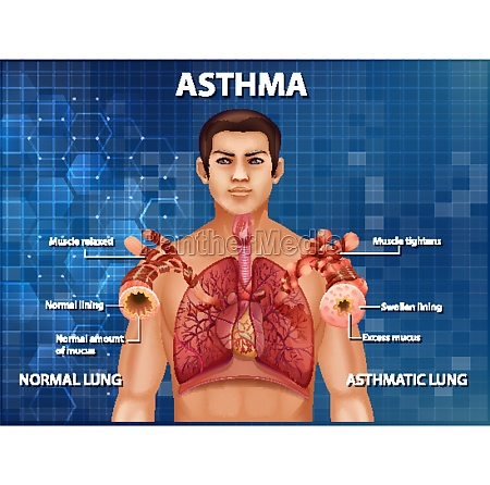 human anatomy asthma diagram
