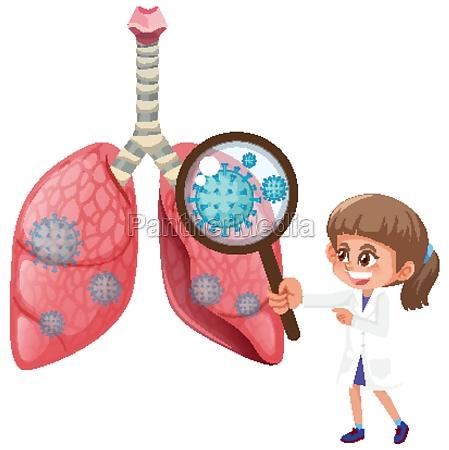 diagram showing human lungs with coronavirus