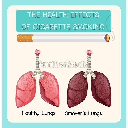 poster on health effects of cigarette