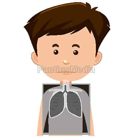 boy with lung x ray